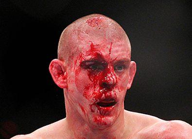 Джо Лоузон выбывает из турнира UFC 180